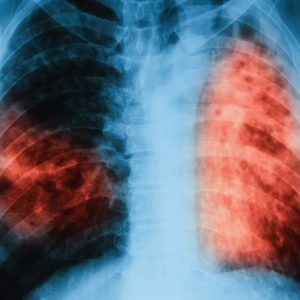 Засякоха туберкулоза и варицела в областта